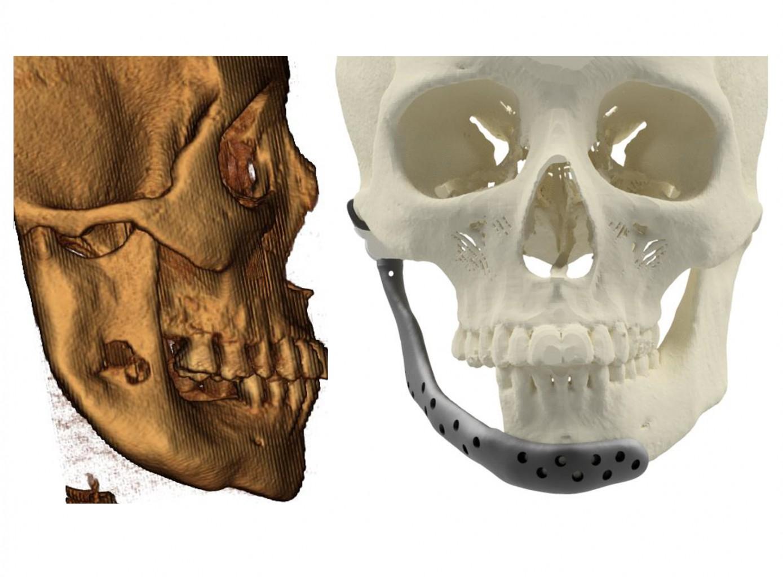 UFU realiza a 1ª cirurgia de substituição total da articulação temporomandibular pelo SUS em Uberlândia