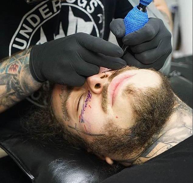 A sessão de tatuagem do rapper Post Malone durante a instalação das novas obras em seu rosto (Foto: Instagram)