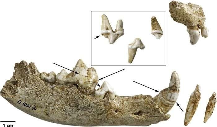 Dentes do cachorro encontrado em 1914 (Foto: Reprodução/LVR-LandesMuseum Bonn)