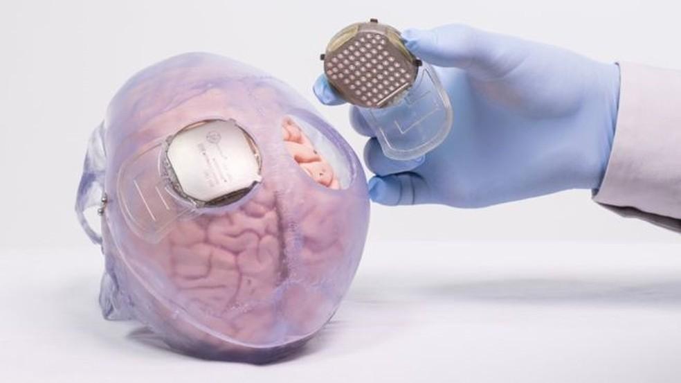 Implantes no cérebro conectam-se ao equipamento — Foto: Fonds de Dotatio Clinatec