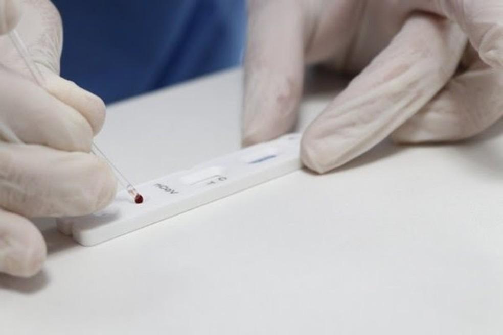 Teste rápido novo coronavírus — Foto: Mauricio Vieira/Divulgação