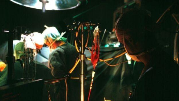 Durante muito tempo, as cirurgias causaram uma enorme taxa de mortalidade e grande sofrimento, ao invés de salvar vidas (Foto: GETTY IMAGES via BBC)