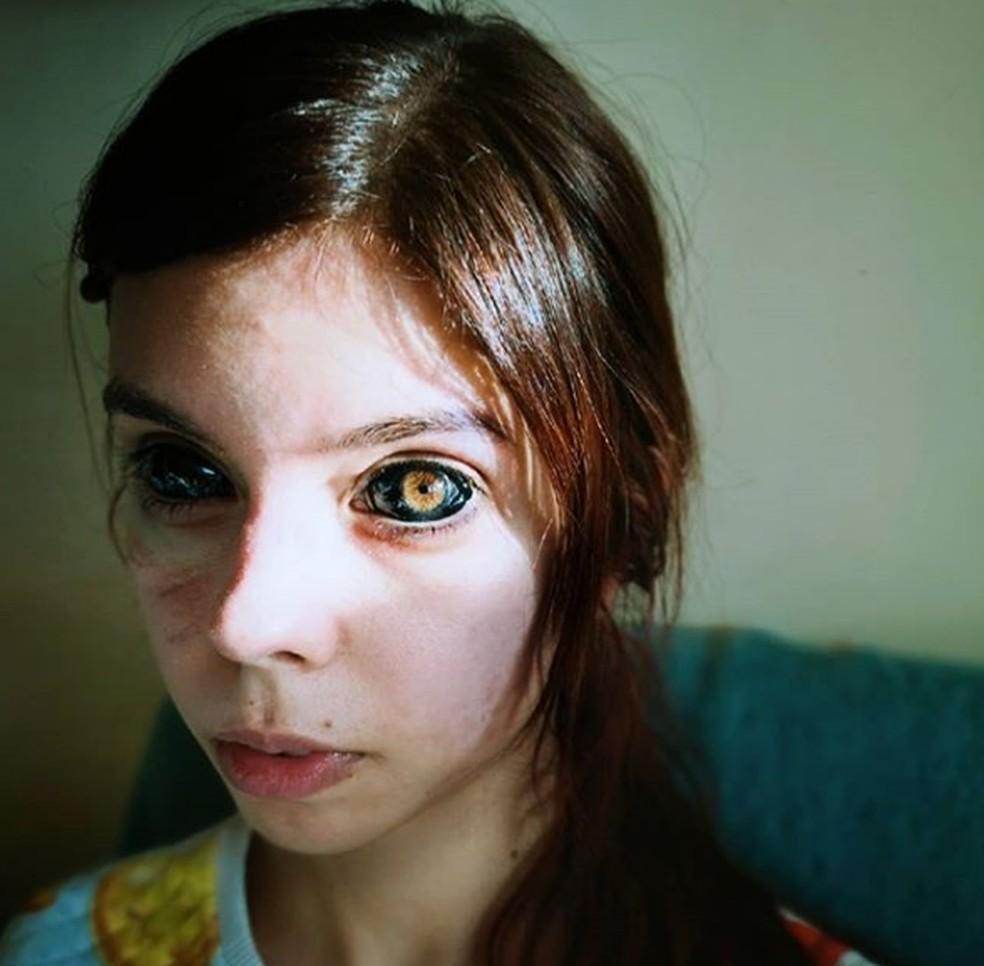 Modelo polonesa perde parcialmente a visão após procedimento estético para tingir seus olhos de preto — Foto: Reprodução/Instagram/anoxi_cime