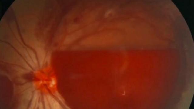 Mulher fica temporariamente cega após uso prolongado do celular