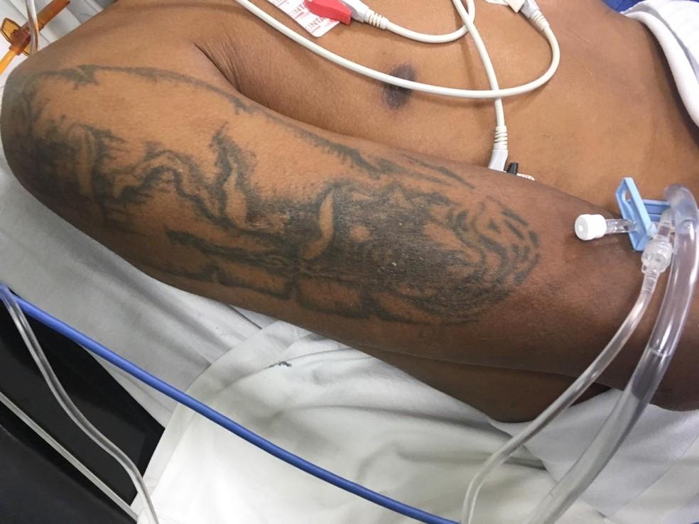De acordo com a Santa Casa de Campo Grande o paciente teve traumatismo craniano — Foto: Santa Casa/Divulgação