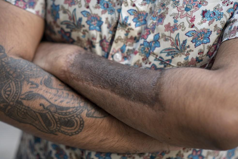 Os médicos retiraram pele do braço esquerdo de Anick para criar seu pênis — Foto: BBC