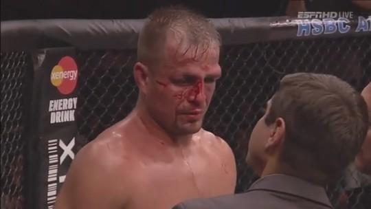 """Dores fazem ex-UFC Fábio Maldonado abandonar sparring em treinos: """"Cabeça não caleja"""""""