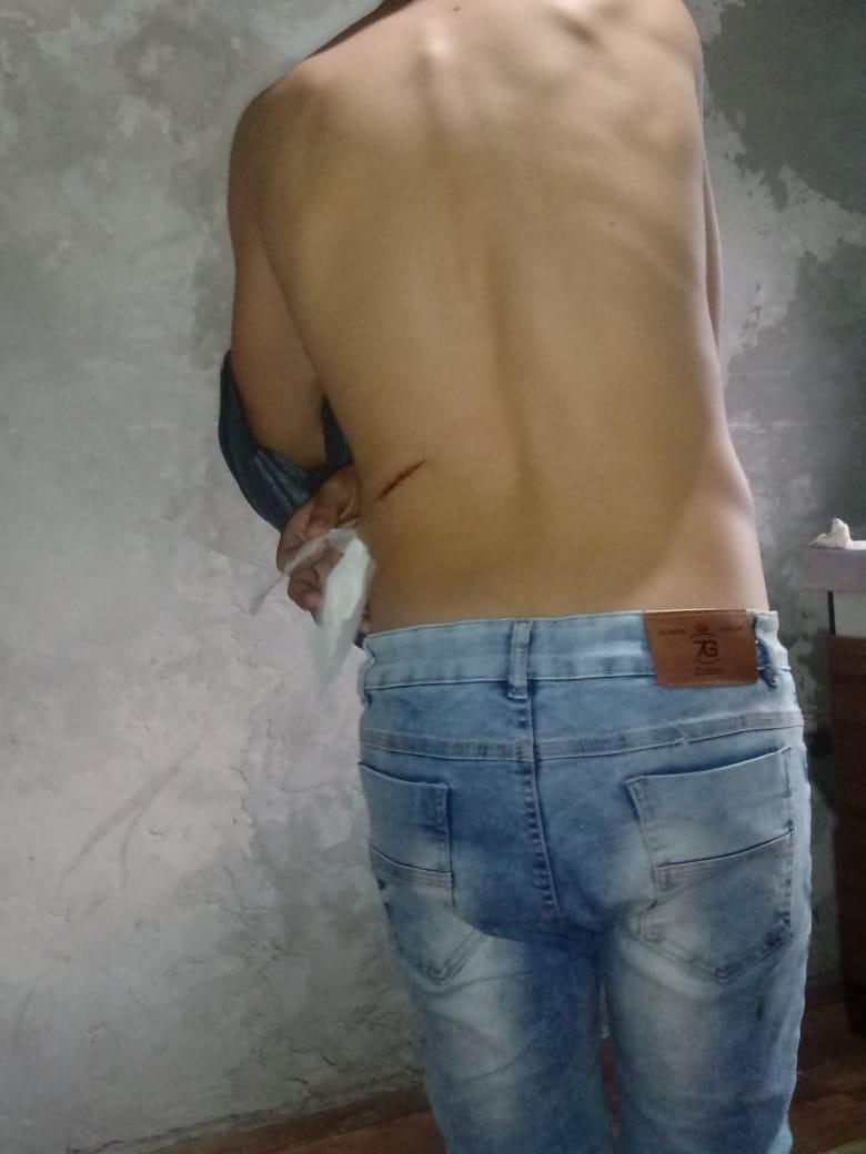 Vítima do ataque em Charqueadas relata que se feriu ajudando colegas: 'Me pus de escudo' - Notícias - Plantão Diário