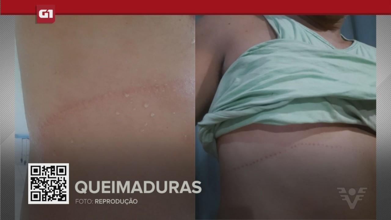 G1 em 1 Minuto - Santos: Banhista é queimado por caravela-portuguesa em Praia Grande
