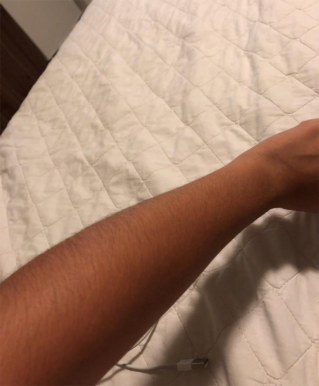 Maisa mostra seu braço em post (Foto: Reprodução/Twitter)