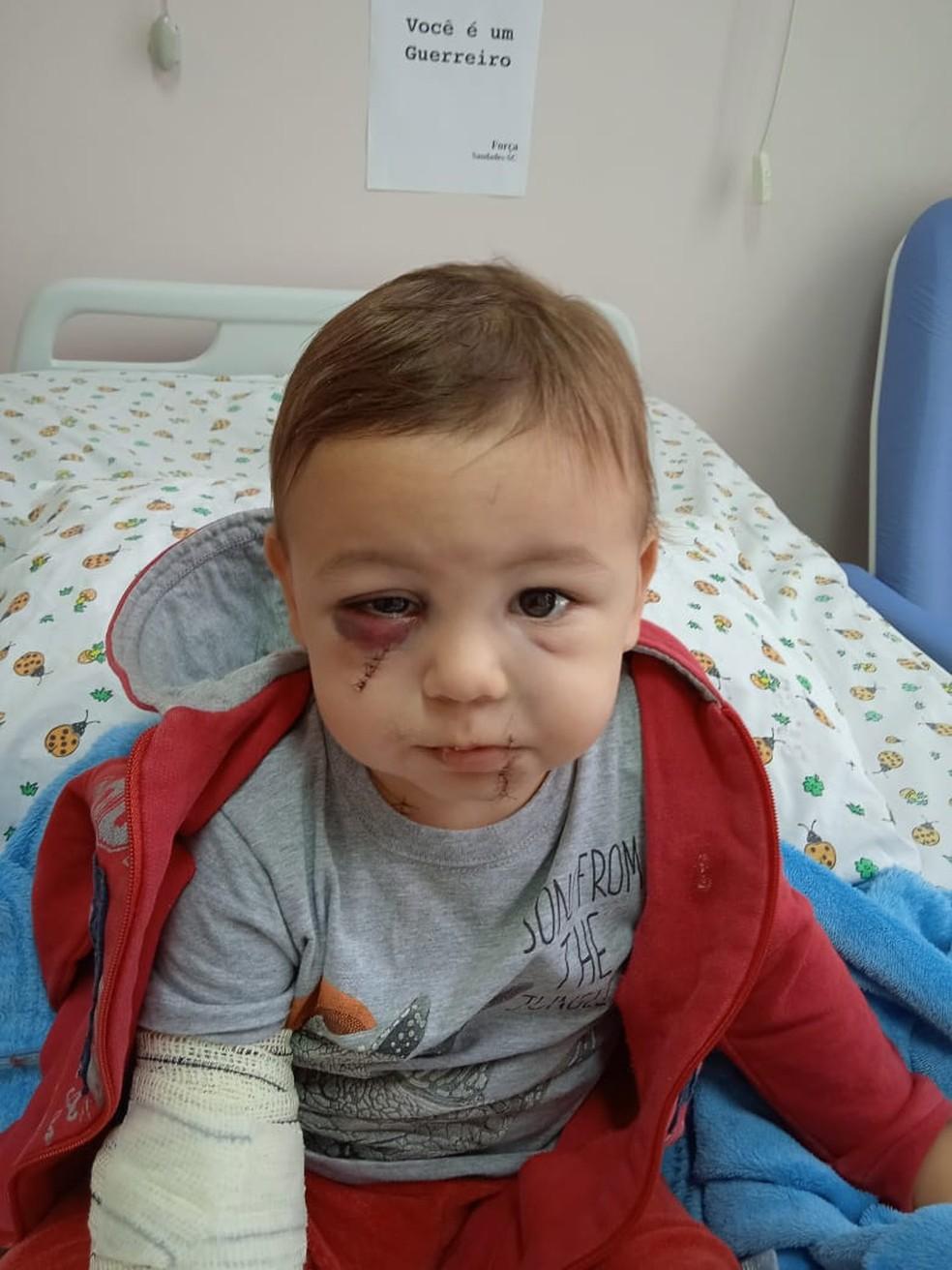 Em foto enviada à reportagem pelo pai, bebê se recupera de ferimentos — Foto: Diego Hübler/Arquivo pessoal