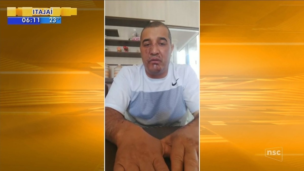 'Meu corpo travou o carro. Ele deu ré e acelerou de novo', diz uma das seis vítimas de atropelamento em Lages