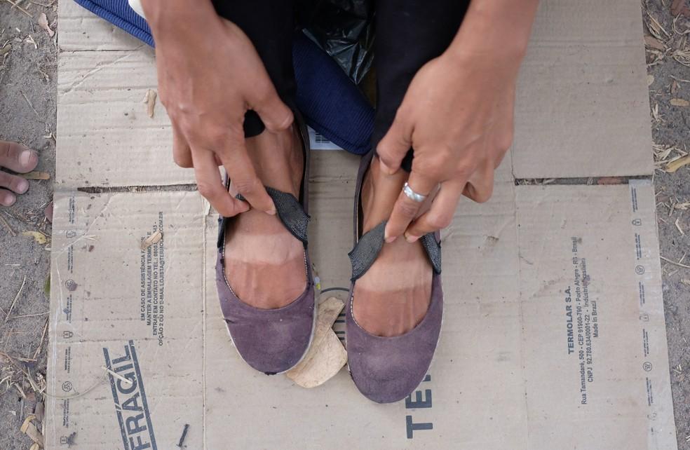 Venezuelana mostra os pés marcados pelo sol após dois dias viajando a pé e de carona, entre Boa Vista e Pacaraima (Foto: Inaê Brandão/G1 RR)