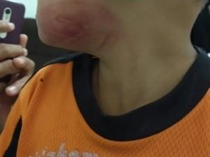 Menino que apanhou no rosto com chinela de couro (Foto: Reprodução)