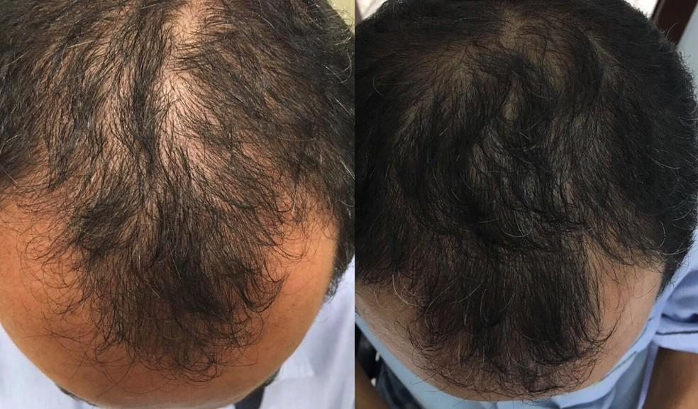 Imagens de antes e depois de tr�s meses de uso do t�nico capilar. � Foto: Marcelo Aparecido da Silva