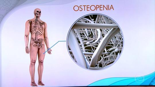 Alimentação, sol e atividade física garantem formação de ossos fortes