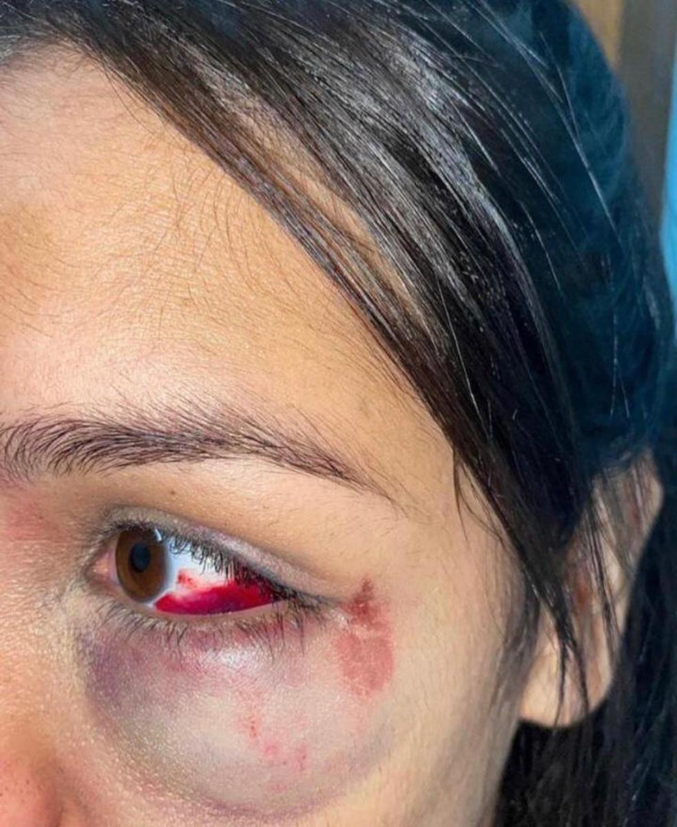 Jovem de 19 anos denuncia agressão feita por PM em evento no extremo sul da Bahia — Foto: Arquivo Pessoal
