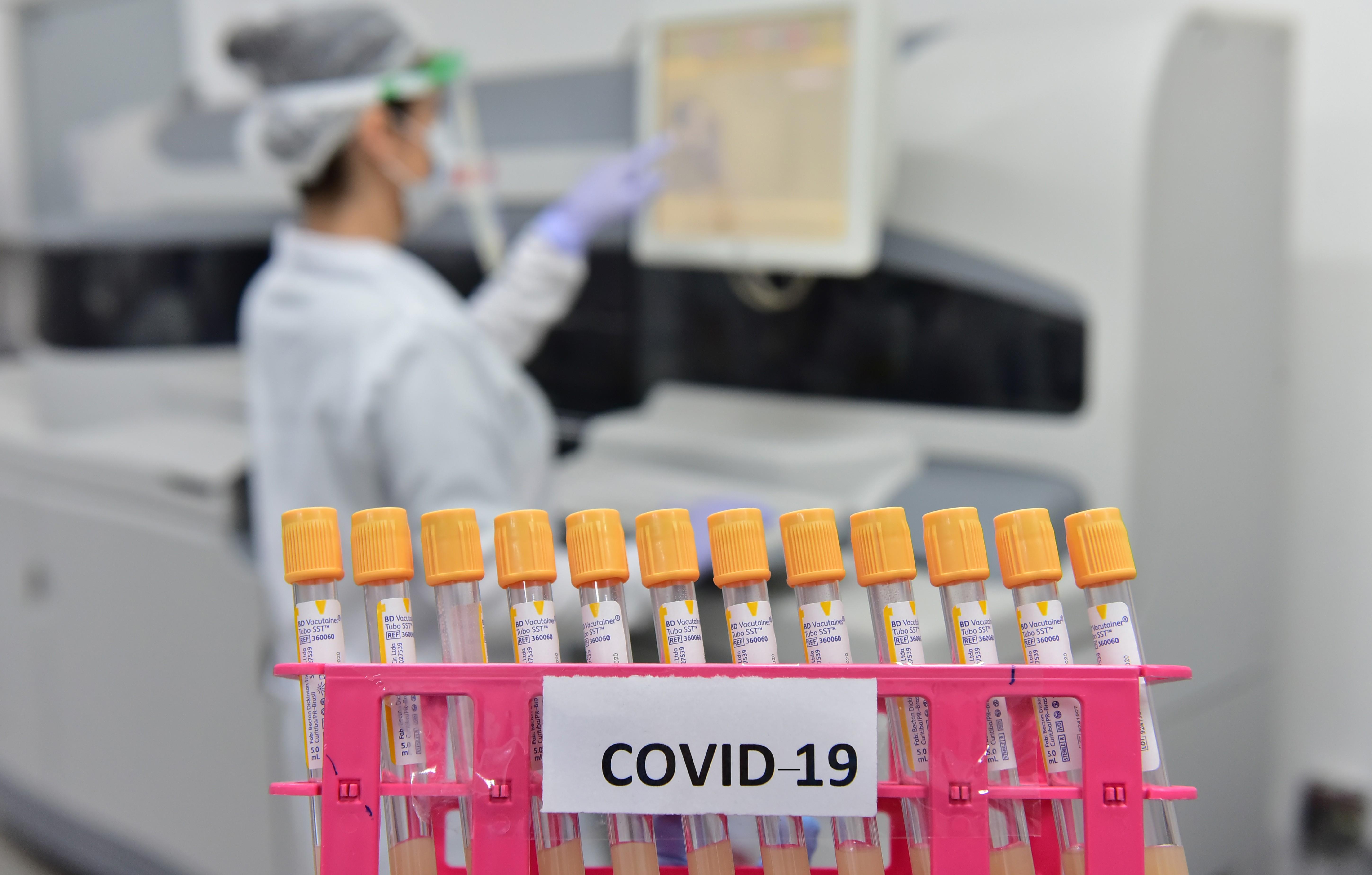 Maranhão tem quase 100 mil casos confirmados do novo coronavírus