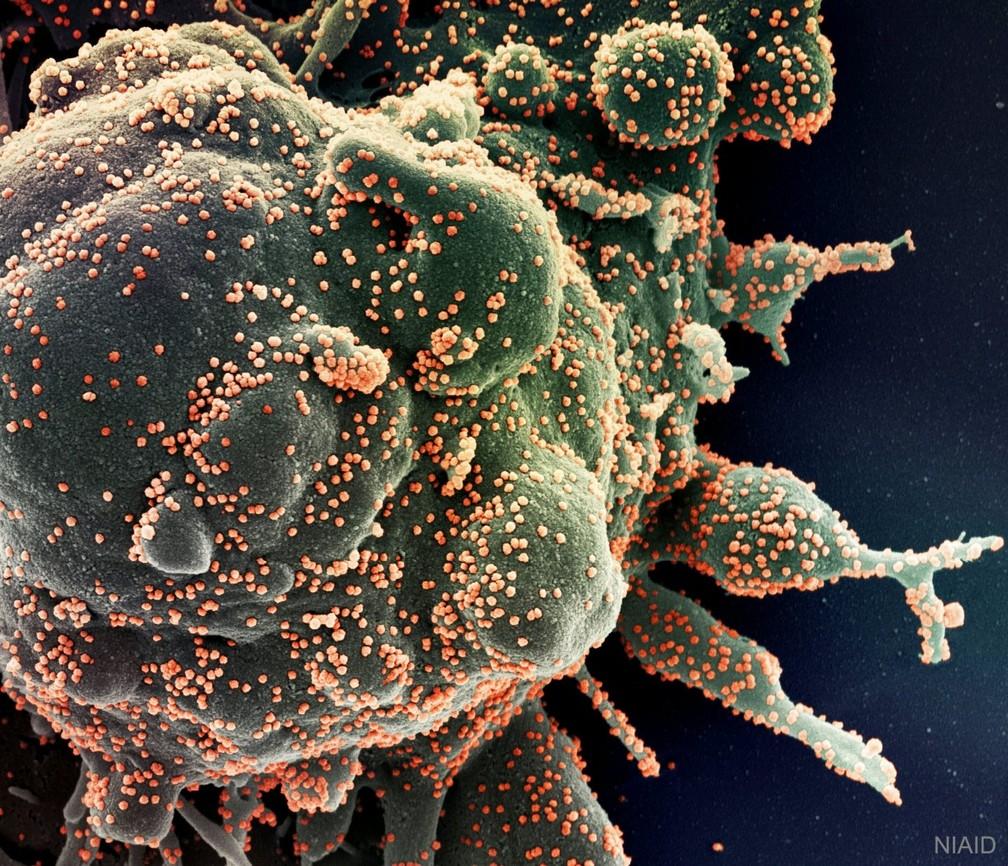 Foto microscópica mostra célula humana sendo infectada pelo Sars Cov-2, o novo coronavírus — Foto: NIAID via Nasa