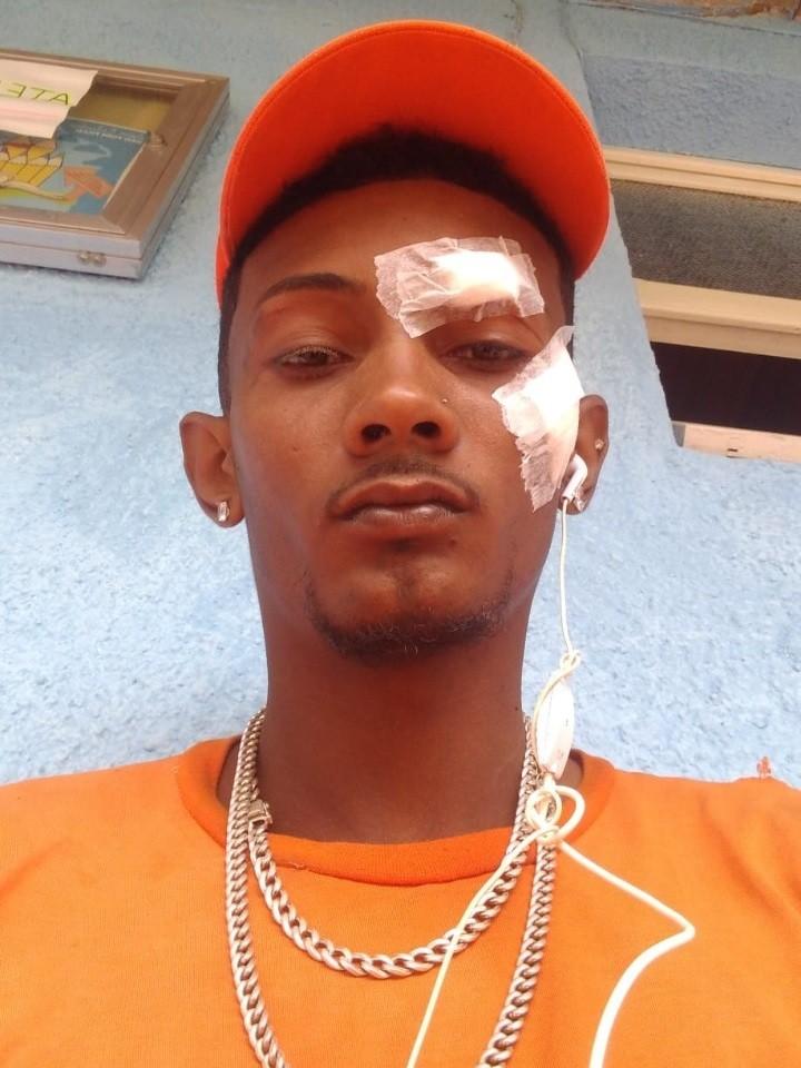 Gari se fere com cacos de porcelana durante coleta de lixo em Barra do Piraí: 'Quase fiquei cego'