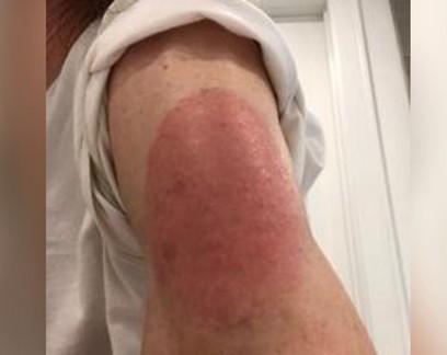 Cientistas investigam reação de pele à vacina da Moderna contra Covid-19