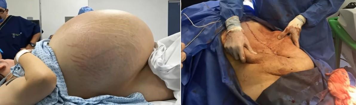 A paciente antes e depois da retirada do cisto ovariano