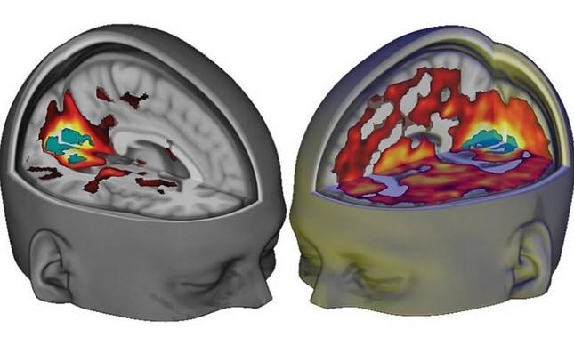 Ilustração mostra áreas do cérebro ativadas por drogas psicodélicas (à direita)