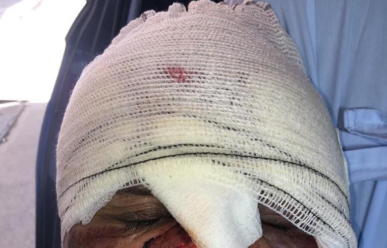 Família de cadeirante atropelado em Maceió acusa médico de embriaguez ao volante e omissão de socorro