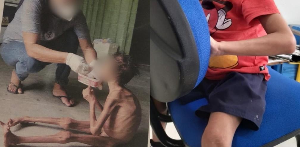 Montagem de fotos mostra o mesmo menino yanomami de 10 anos em 9/2 (à esquerda) e em 25/5 (à direita) após tratamento — Foto: Arquivo pessoal