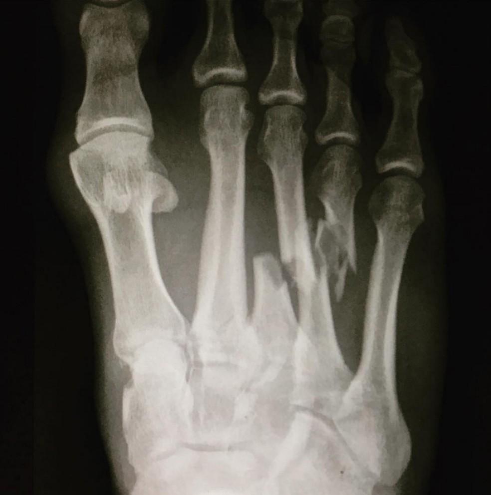 Kelly Slater mostrou a fratura no pé em raio-X em julho deste ano (Foto: Reprodução)