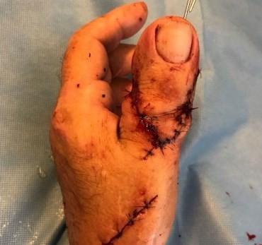 Dedão do pé substitui polegar em cirurgia na Holanda