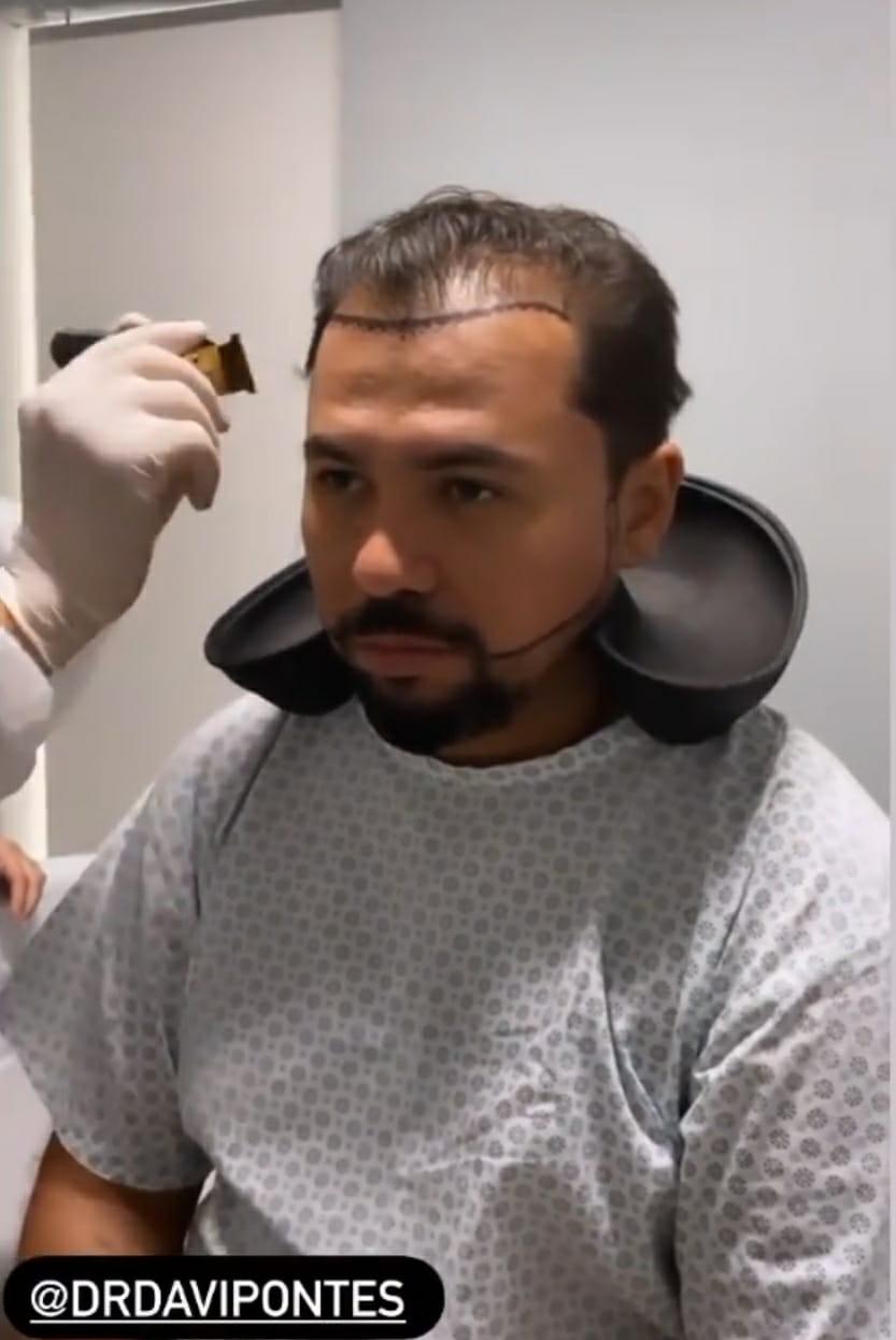 Xand Avião faz transplante capilar (Foto: Reprodução/Instagram)