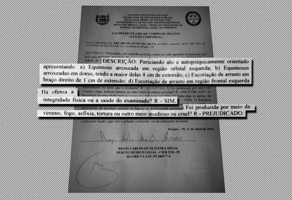 Laudo comprovou lesões em preso — Foto: Reprodução/Polícia Civil