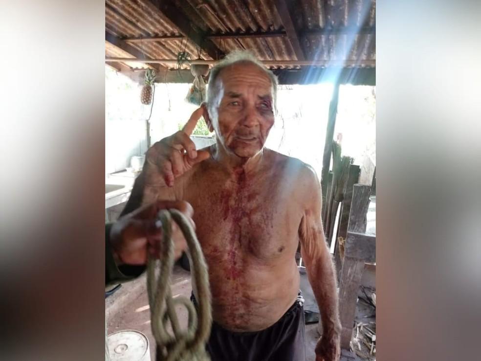Idoso de 79 anos lutou com homem que tentou matá-lo no Pará — Foto: Polícia Militar de Alenquer/Divulgação
