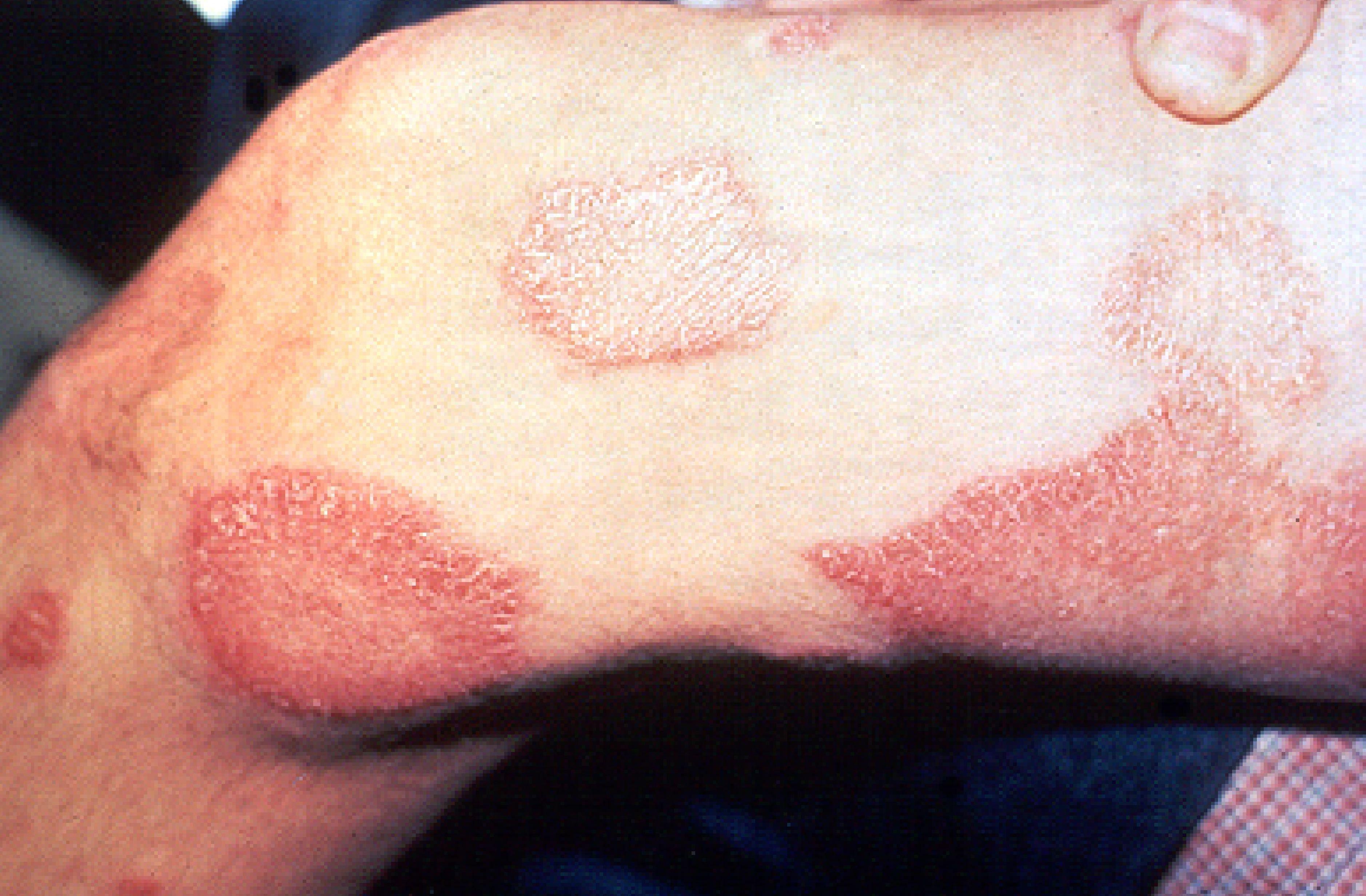 Manchas rosadas e avermelhadas são comuns em quem tem hanseníase (Foto: US.department of health and human services/Wikimedia Commons)