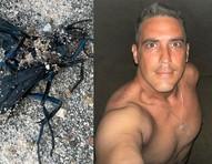 André Marques é picado por vespa em gravações de No Limite