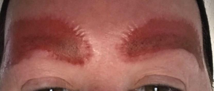 Amanda Coats após tatuagem na região das sobrancelhas