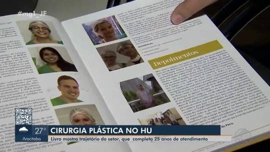 Livro conta a evolução do atendimento de cirurgia plástica no HU-UFJF em Juiz de Fora
