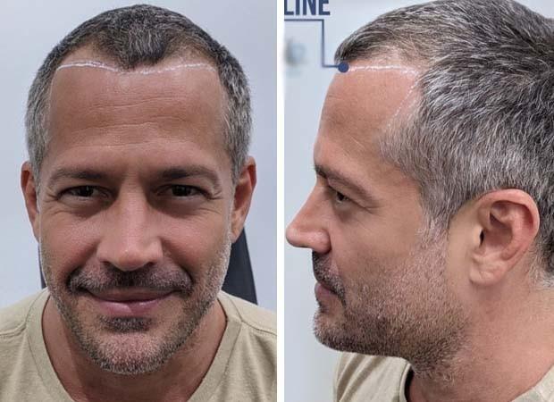 Malvino Salvador mostra marcação antes do procedimento de transplante capilar (Foto: Reprodução)