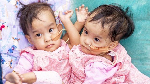 Meninas têm pouco mais de um ano de idade e nasceram no Butão (Foto: EPA via BBC News Brasil)