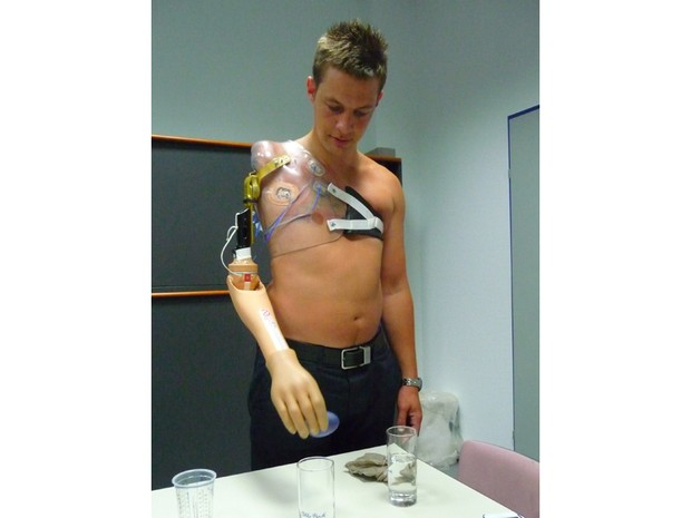 Andrew aprende a usar o novo braço após a operação em Viena. Foram necessários 18 meses de reabilitação para o soldado adquirir controle fino dos movimentos (Foto: Ministério da Defesa do Reino Unido)