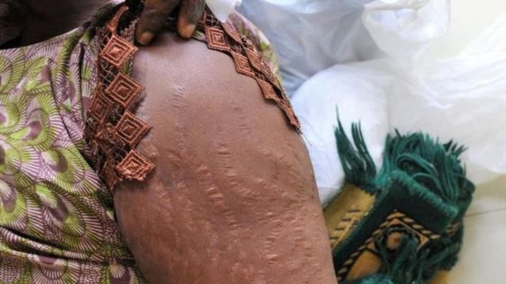 Substâncias usadas nos clareadores de pele podem provocar danos graves, como queimaduras e cicatrizes — Foto: AFP
