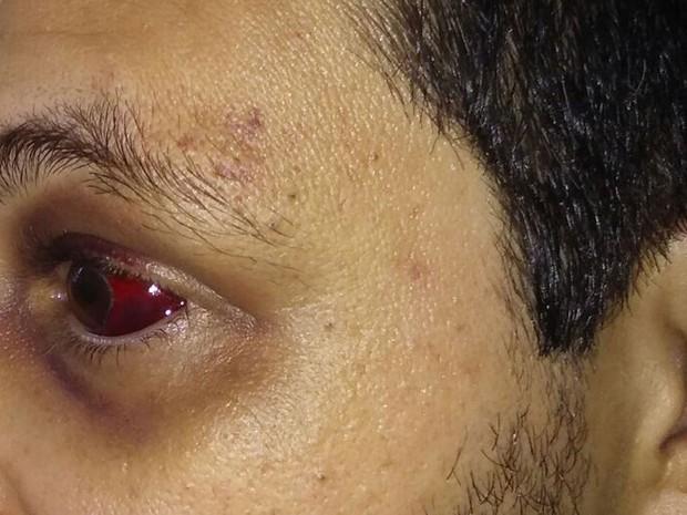 Agente foi agredido por vários presos no interior de SP (Foto: Arquivo Pessoal)