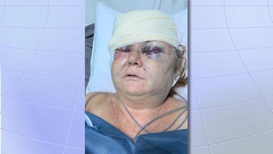 Idosa é espancada por dupla em assalto em São José