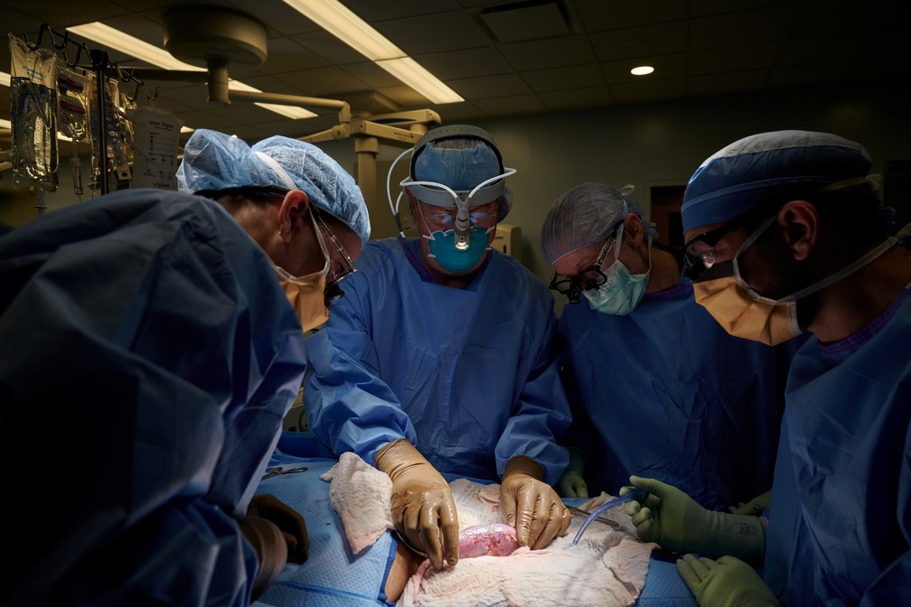 Na foto, não datada, equipe cirúrgica examina o rim de porco em busca de sinais de rejeição. O órgão foi implantado fora do corpo para permitir a observação e amostragem de tecido durante o período de estudo, de 54 horas, na NYU Langone em Nova York, EUA. — Foto:  Joe Carrotta para NYU Langone Health/via Reuters