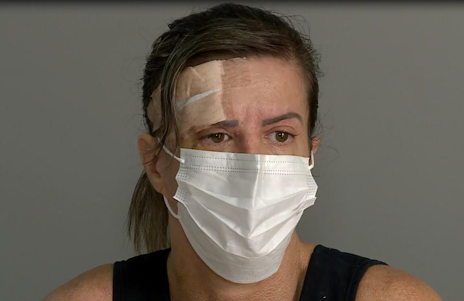 'Não tenho coragem de me olhar', diz mulher atacada por cachorro da raça pitbull em Petrolina
