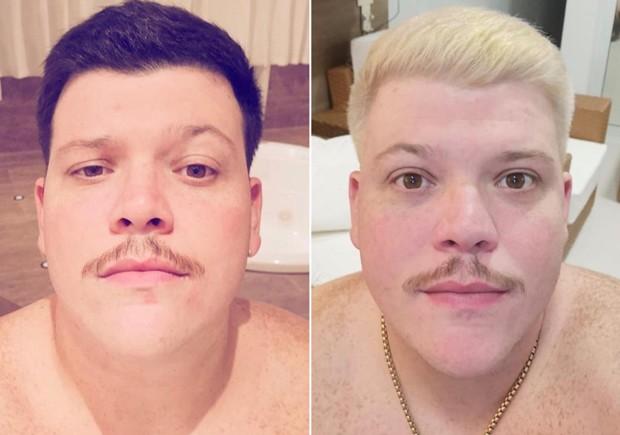 O antes e o depois de Ferrugem (Foto: Arquivo Pessoal)