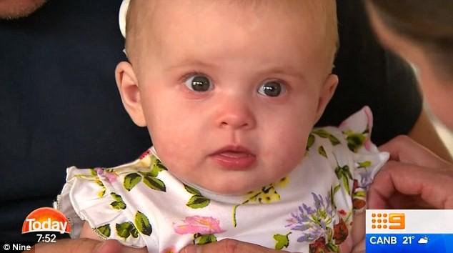 A pequena Goldie ouviu a voz dos pais pela primeira vez - momento foi emocionante (Foto: Reprodução/ Nine)