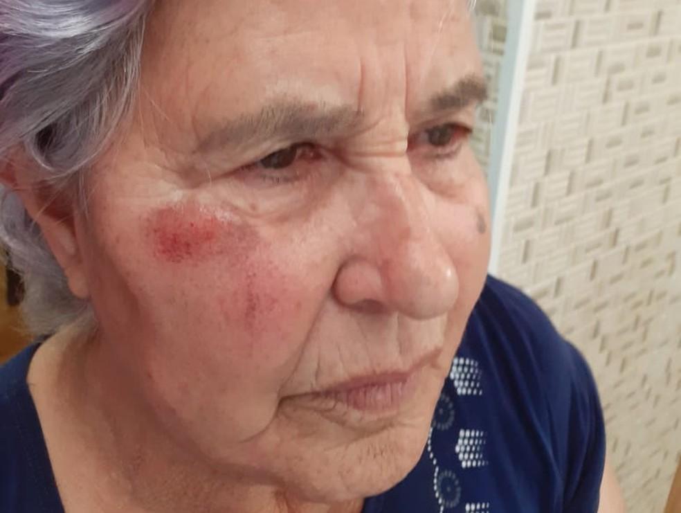 Idosa sofreu escoriações após cair de ônibus em Campinas (SP) — Foto: Arquivo pessoal