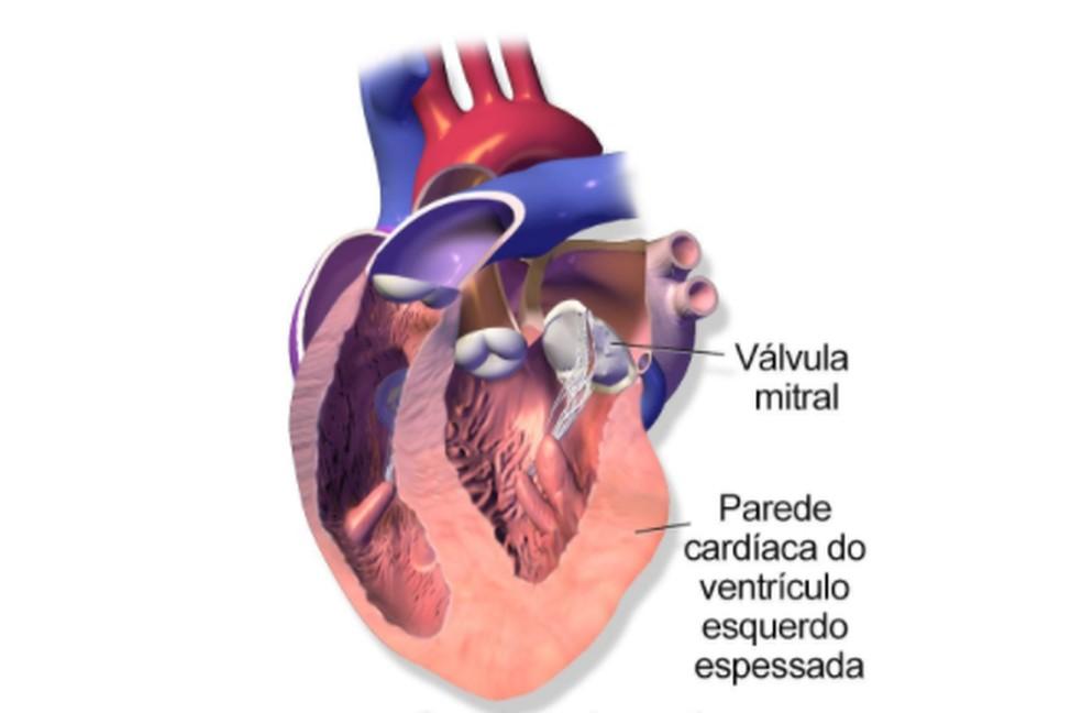 Imagem divulgada pelo Ministério da Saúde explica que, na cardiomiopatia hipertrófica, os ventrículos do coração ficam espessados, mas não conseguem bombear sangue suficiente para o corpo — Foto: Reprodução/Ministério da Saúde